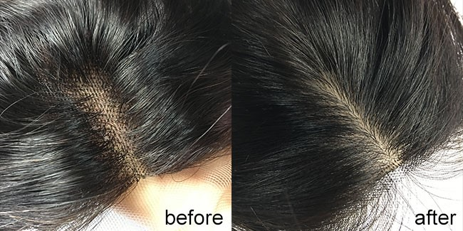 Reasons Of Bleaching Knots On Lace Closure